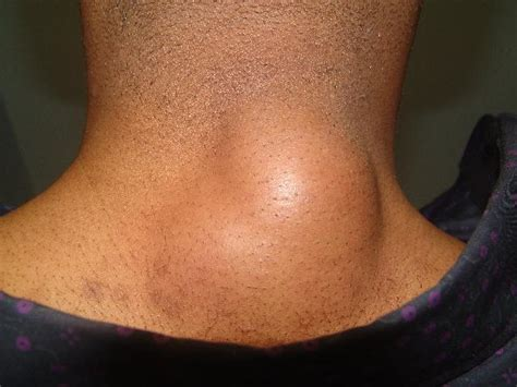 pictures of skin infections picture 1