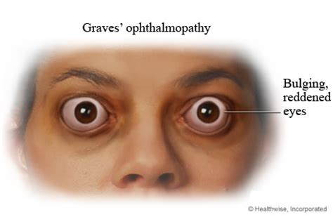 floaters hypothyroidism picture 6