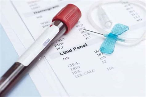 cholesterol blood test picture 1