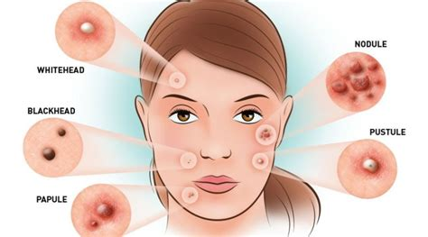 how to treat acne picture 7