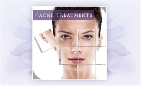 acne cure picture 17