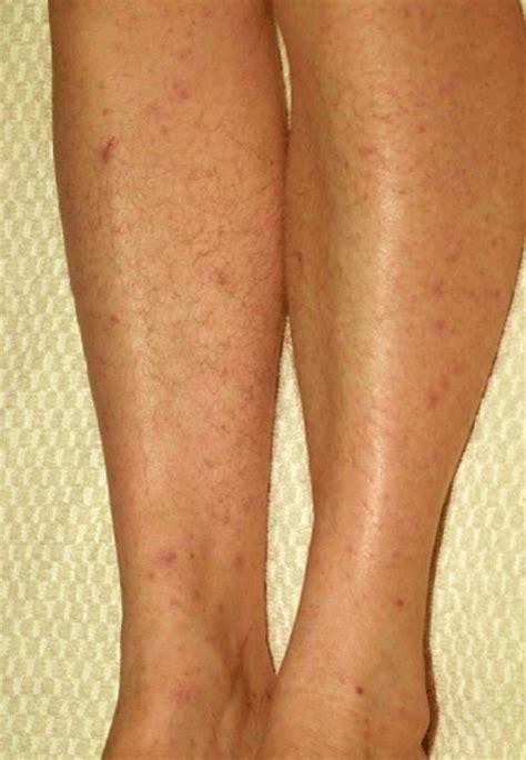 maculopapular skin rash picture 13