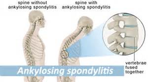 Ankylosing spondylitis prostate picture 5
