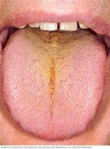 antibiotic side effects discoloring h picture 9