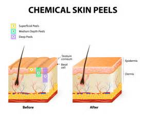 chemisty and effect on skin picture 10