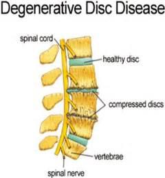 cream for degenerative spine disease picture 10