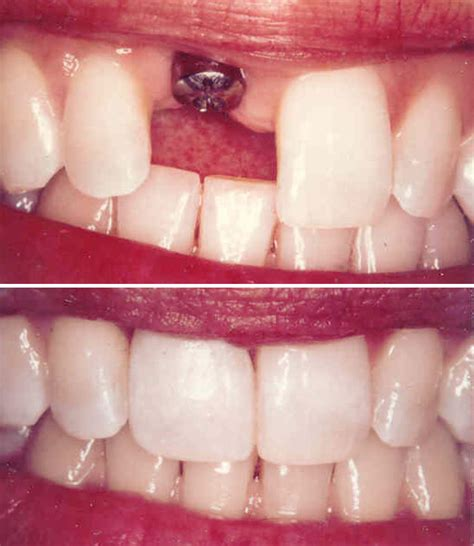 false teeth permanent picture 7