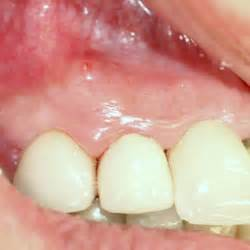 sinus infection and dental/oral pain picture 17