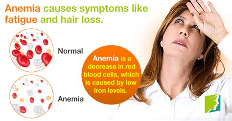 anemia causing hair loss picture 7