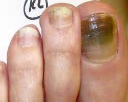 laser technology for toenail fungus in maryland picture 6