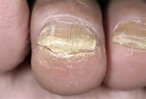 my toes nails are yellowish and the skin under the front picture 12