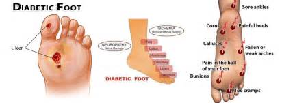 foot problems in diabetics picture 6
