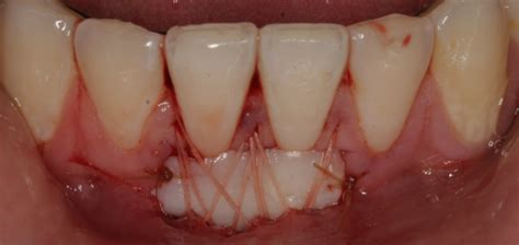 teeth sensitivity picture 10
