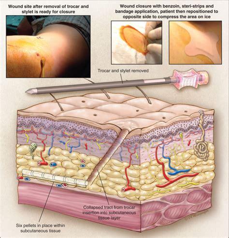 testosterone pellet trocar kit picture 6