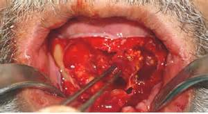 wart enucleation picture 1