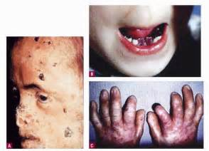 is skin color hereditary picture 2