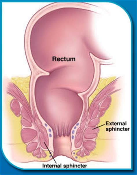 involuntary bowel movements picture 7