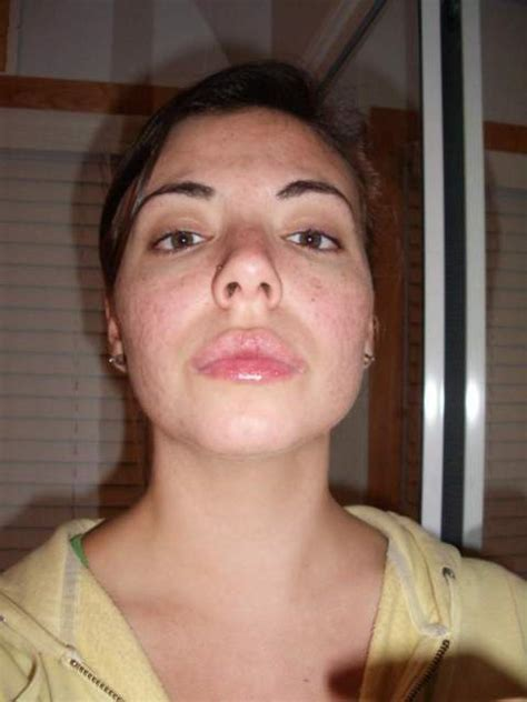 chapped lips my whole life picture 1