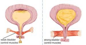 can drinking beer cause bladder infections picture 5