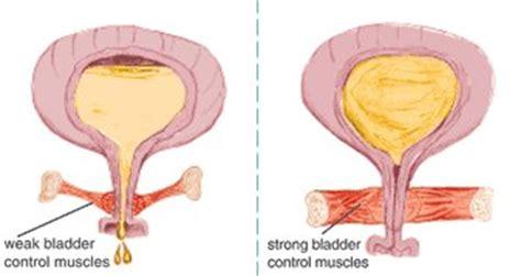 kiegel exercises for weak bladder picture 7