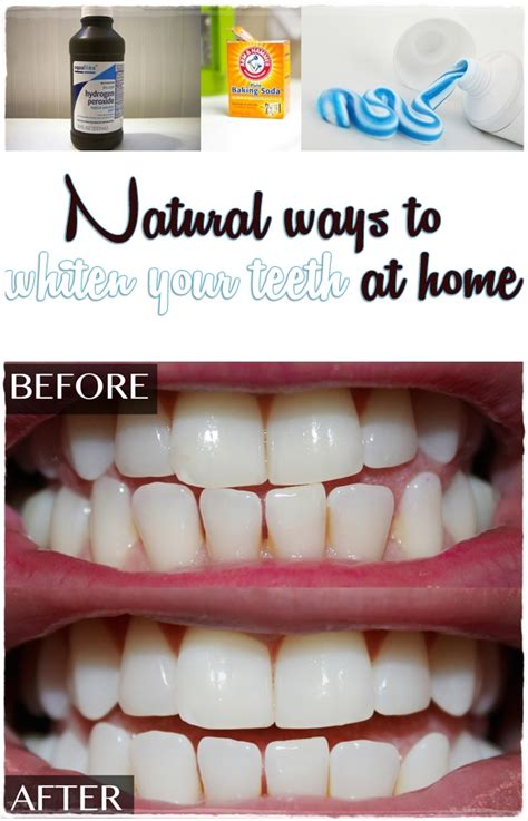 ways to whiten your h at home picture 10