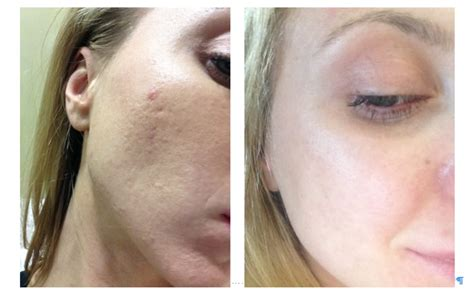 skin lasik for acne picture 3