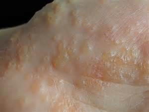 eczema skin disorders picture 5