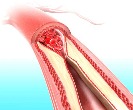 irritable bowel urgency picture 15