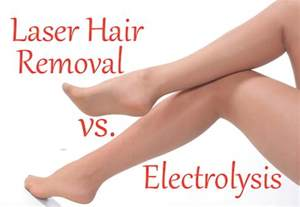home permanent hair removal picture 3