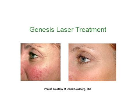 laser on diffrent skin conditions picture 17