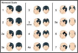 tam mateo hair loss picture 14