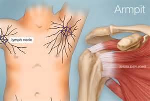 autoimmune axillary pain picture 1
