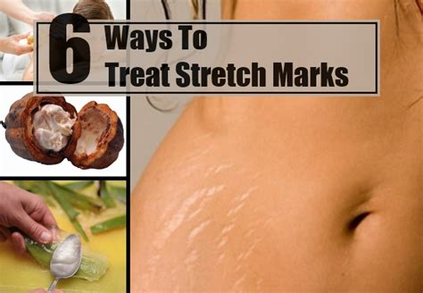 can maca heal stretch marks picture 15