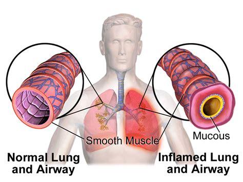 smoke inhalation picture 6