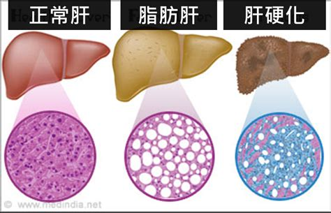what is in the liver picture 6
