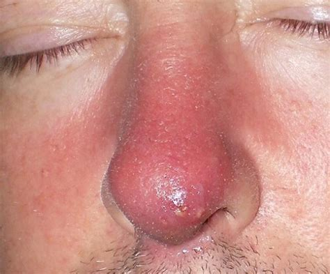 what causes boils on the skin picture 11