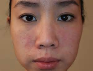 warts removal face picture 17