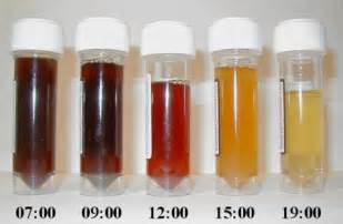 liver disease blood in urine picture 5
