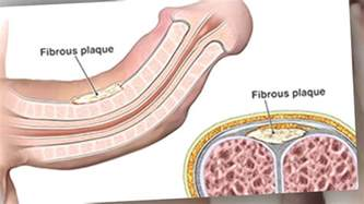 peyronie disease pictures picture 2
