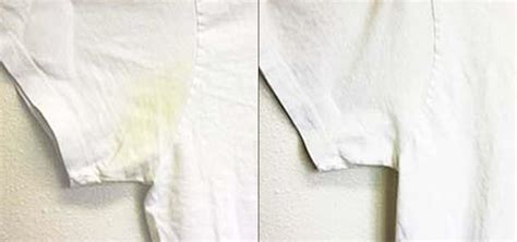 whiten clothes picture 2