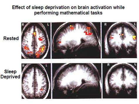 future research on sleep deprivation picture 10