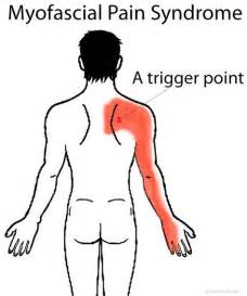 can indigestion cause pain btween your shoulder blades picture 10