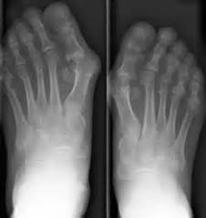 probable fracture of 5th toe joint picture 14