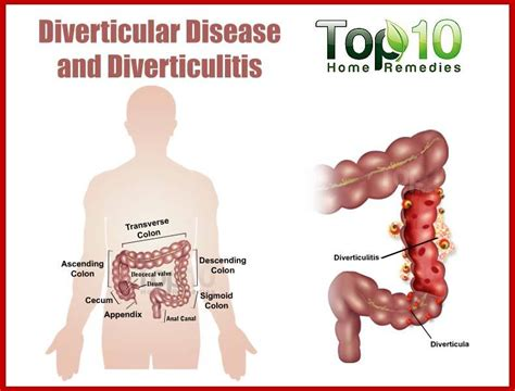 diet and treatment of diverticulitis picture 11