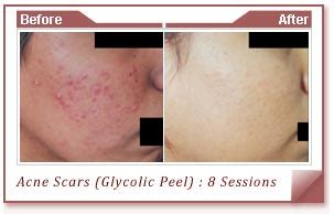 salicylic acid for removal of dark spot on picture 6