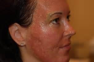 co2 laser acne scar treatment picture 3