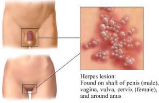 how do doctor test for herpes herpes picture 6
