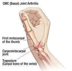 joint pain in wrist area radiating down mid picture 1