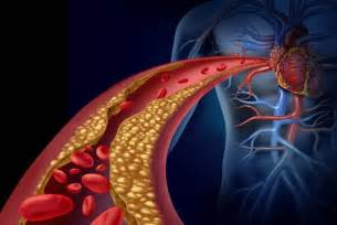 What is high cholesterol picture 6