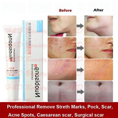 aminosculpt for acne scars and stretch marks picture 8